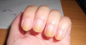 κίτρινα νύχια