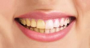μαύρα δόντια