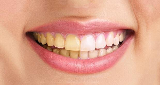Πίπα χρησιμοποιώντας τα δόντια