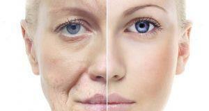 αντιγήρανση δέρματος